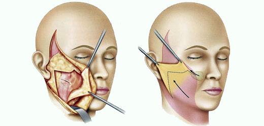 Evolución del lifting facial: del tipo SMAS al de plano ...