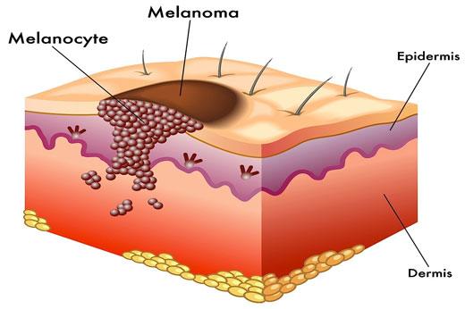 ABCDE: el alfabeto del melanomalunares | melanoma | cancer | UV ...