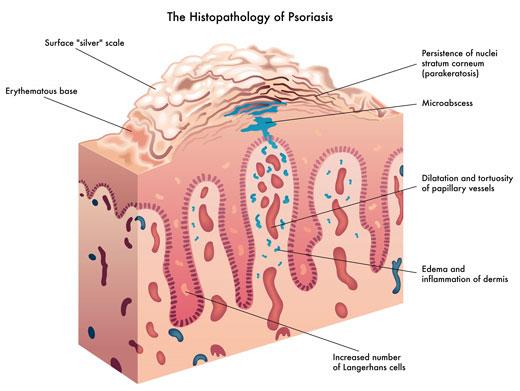 Psori la crema de la psoriasis las revocaciones