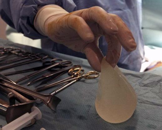El vida de implantes y prtesis despus de la muerte