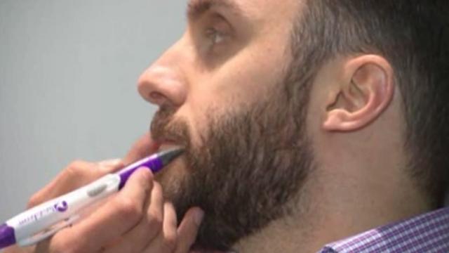 Las consultas por implantes de barba aumentaron entre un 30 y un 40 ...