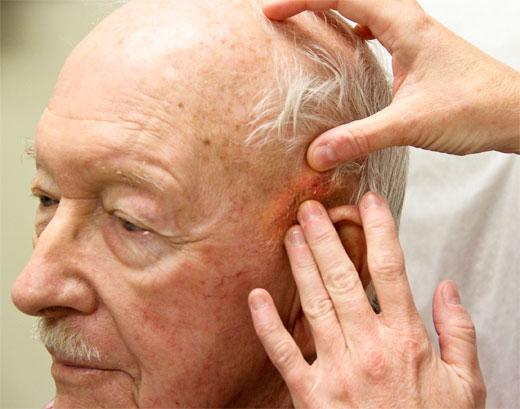 Cáncer de piel: a mayor edad, mayor riesgo