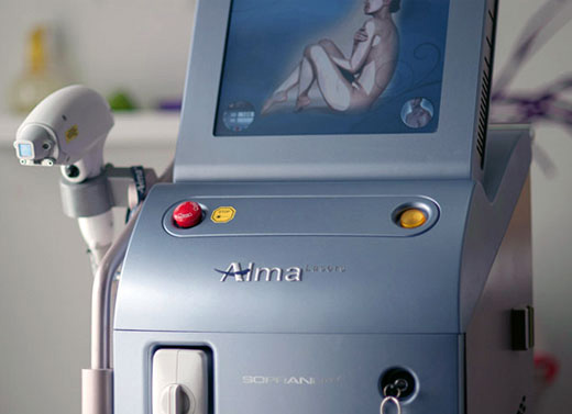 Rent Laser Soprano: servicio de alquiler de equipos de depilación ...